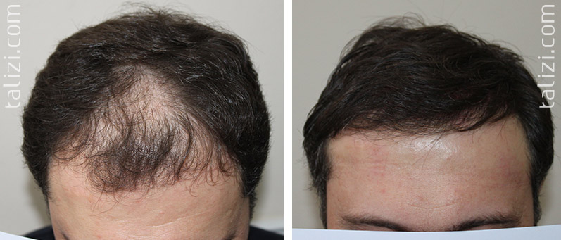 Photo: Before and after transplant of 2000 grafts using Long Hair Transplant