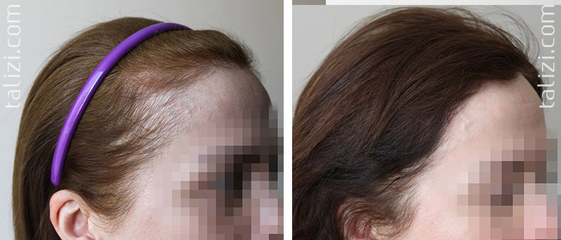 Photo: Before and after transplant of 1200 grafts using strip method