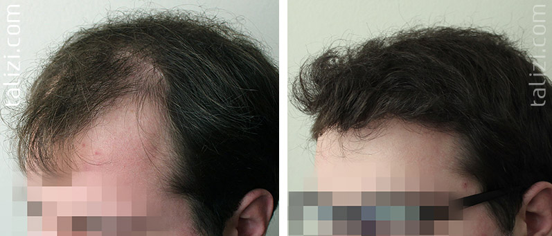 Photo: before and after transplant of 2500 long hair grafts
