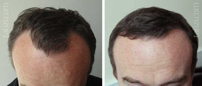 Photo: Before and after transplant of 2300 grafts using strip method
